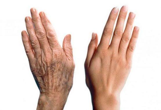 Липофилинг рук. Омолаживающие технологии.