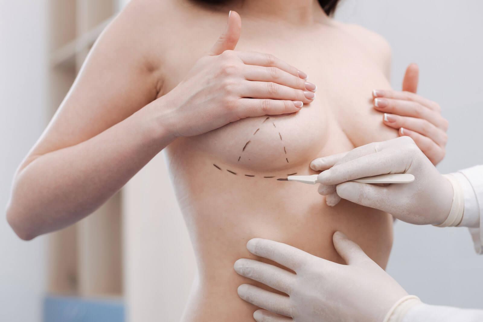 Увеличение груди. Круглые или анатомические?