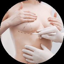 Категория Пластика груди