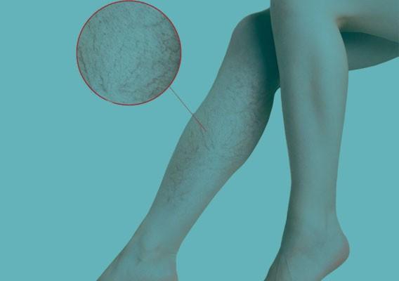 Категория Склеротерапия / Склерозирование вен