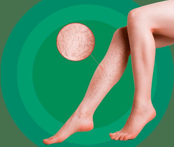 Склеротерапия / Склерозирование вен