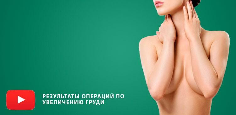 Видео Результат операции по увеличению груди
