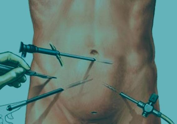 Категория Лапароскопическая хирургия