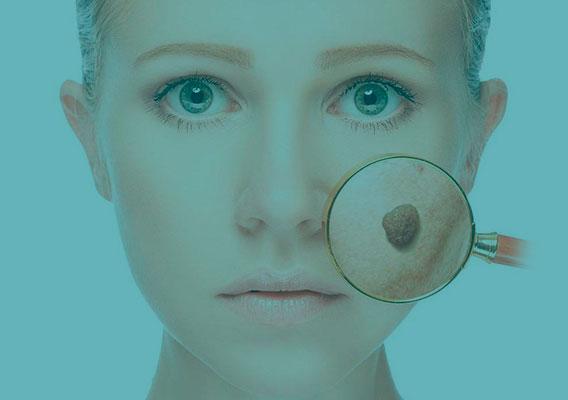Категория Удаление кожных образований
