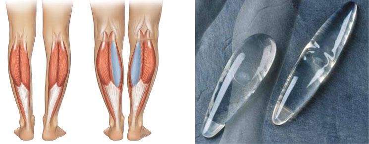 Разновидности формы имплантов голеней применяемых для эндопротезирования голеней (круропластика)