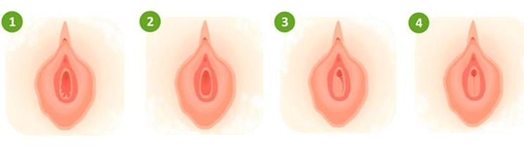Как правильно выбрать вариант гименопластики