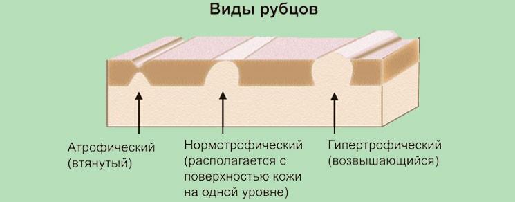 Этапы заживления раны и формирования рубцов