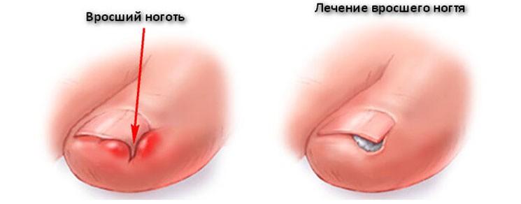 Операция при лечении вросшего ногтя