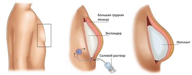 Тканевая дерматензия эспандерами