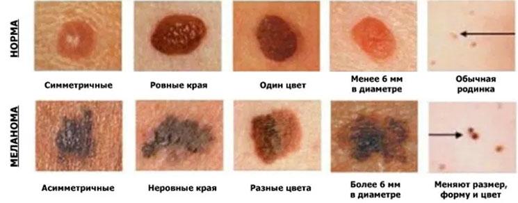 Меланонеопастные и меланоопастные невусы