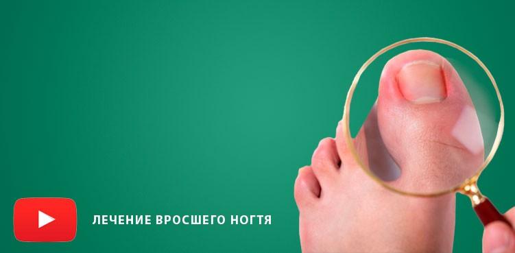 Видео Лечение вросшего ногтя