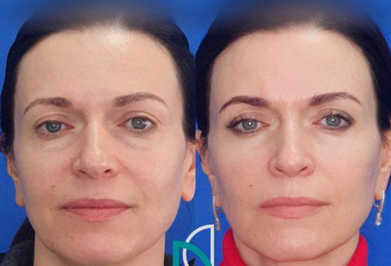 Круговая блефаропластика и липофилинг лица